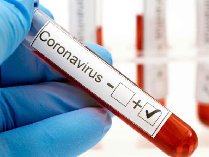 Coronavirus en Argentina: 5.884 nuevos casos y 107 fallecimientos en 24 horas