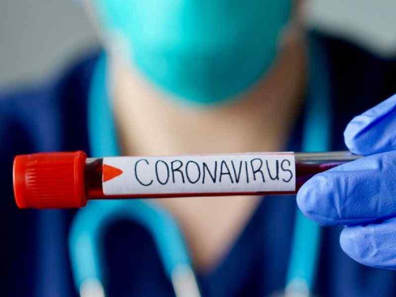 Coronavirus en la Argentina: 184 nuevas muertes y 6.064 contagios en las últimas 24 horas