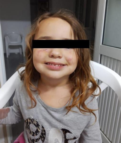 Bellocq: denuncian que hay un perro en despensa que ha mordido a niños